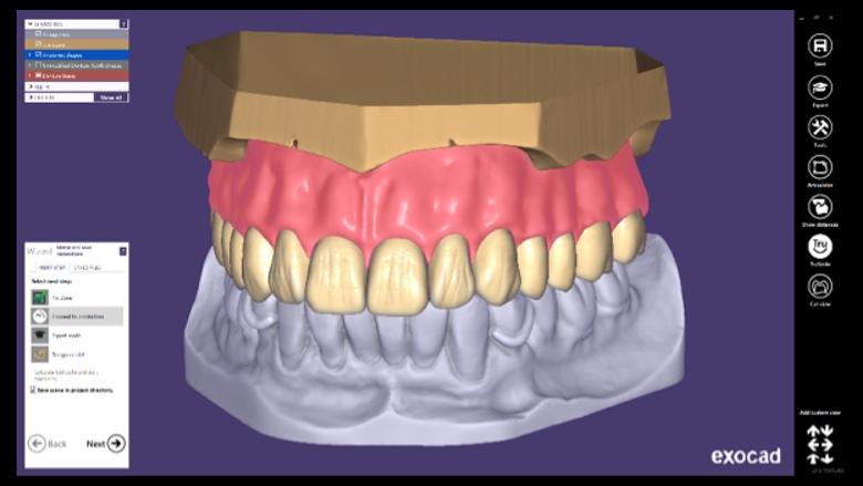 DentalCAD 2.4 Plovdiv de exocad ya está disponible