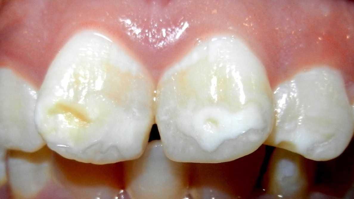 Colgate lanza un Advisory Board sobre mancha blanca en ortodoncia