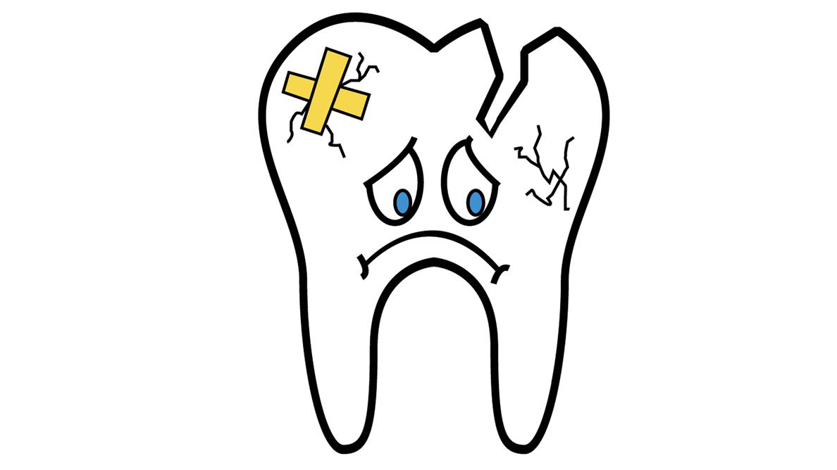 El 39% de los traumatismos dentales son a causa del deporte